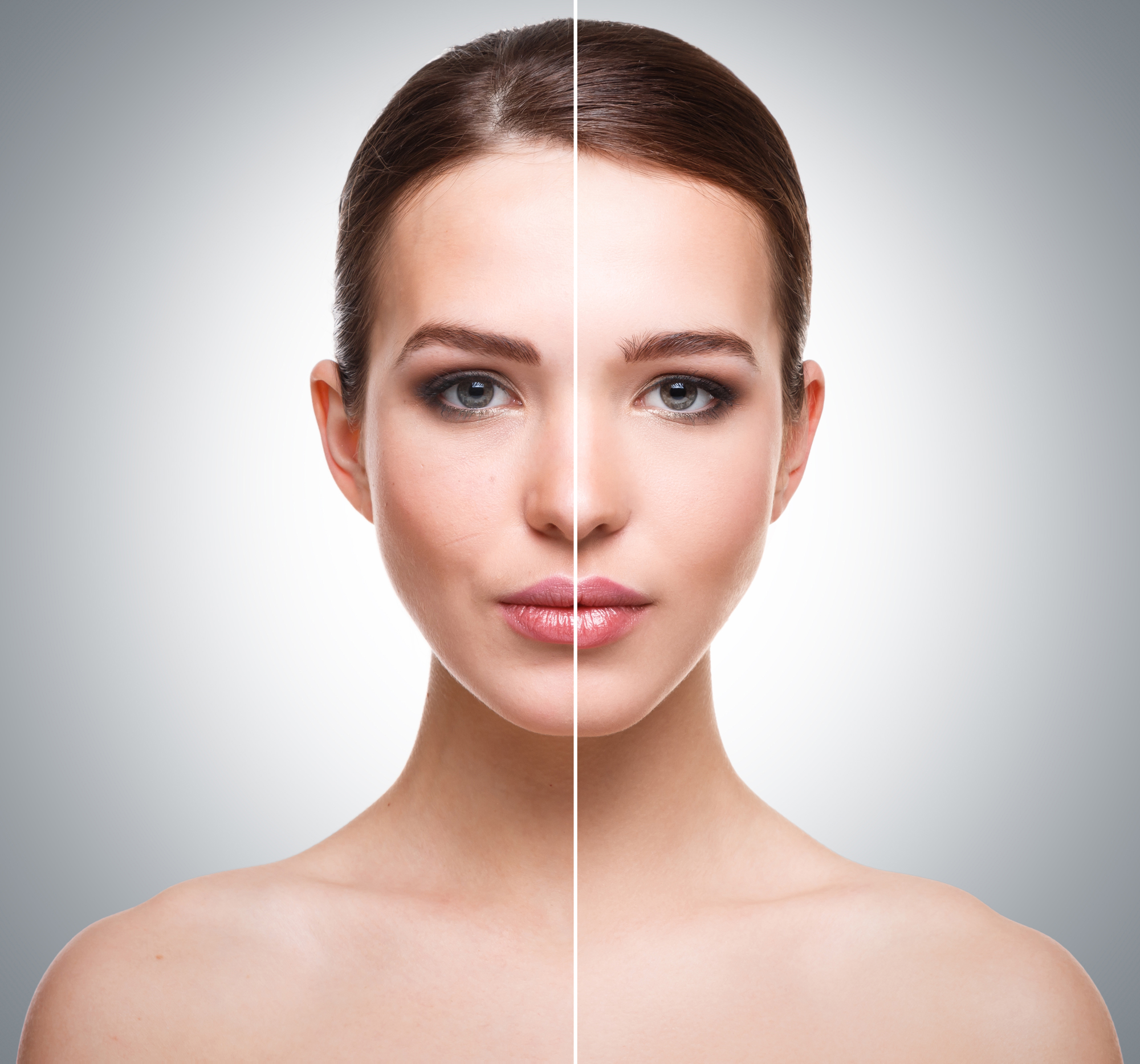 Peeling AHA. aspecto de la piel antes y después del trataiento