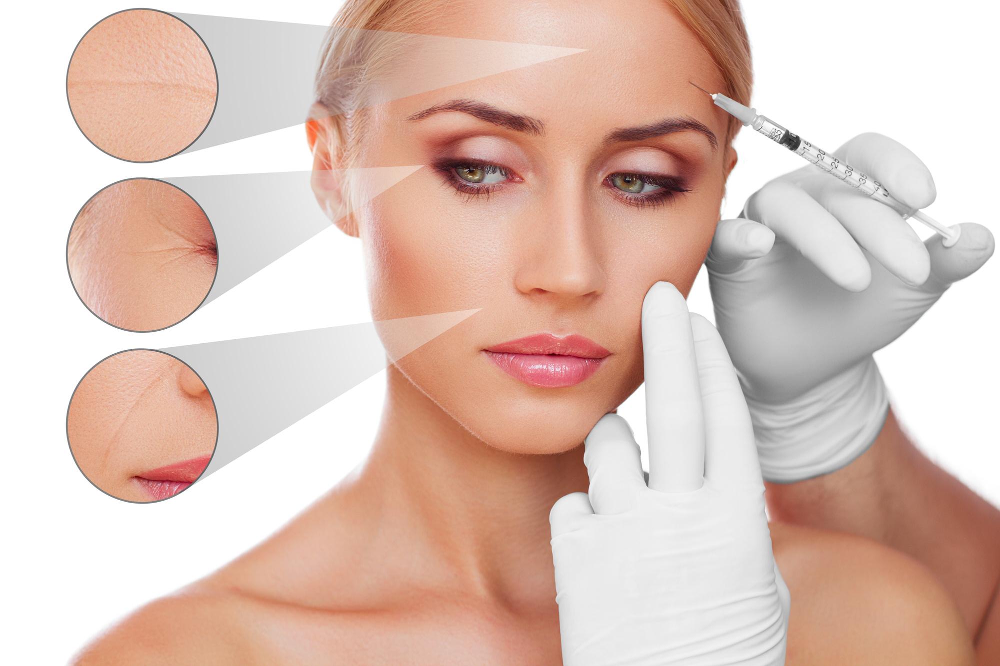 elimina las arrugas de expresión con el botox