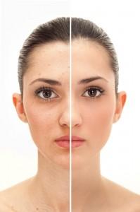 peeling AHA para tratar el acné